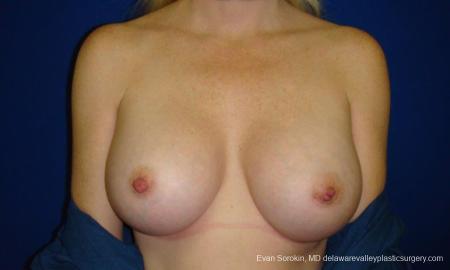 Philadelphia Breast Augmentation 9295 -  After Image 1