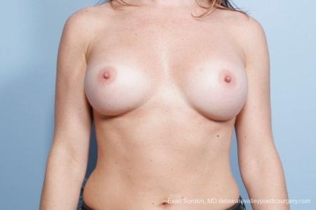 Philadelphia Breast Augmentation 8785 -  After Image 1