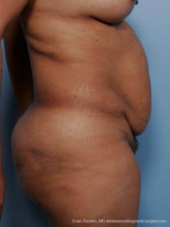 Philadelphia Abdominoplasty 9461 - Before Image 3