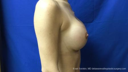 Philadelphia Breast Augmentation 13177 -  After Image 3
