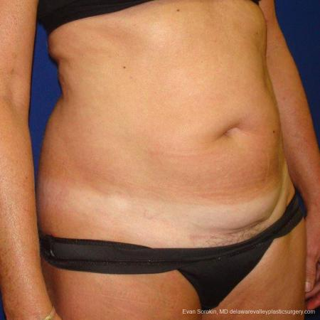 Philadelphia Liposuction 9488 - Before Image 4