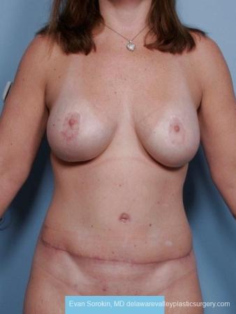 Philadelphia Mommy Makeover 8674 - After Image
