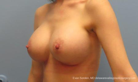 Philadelphia Breast Augmentation 8781 -  After Image 3