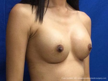 Philadelphia Breast Augmentation 13071 -  After Image 2