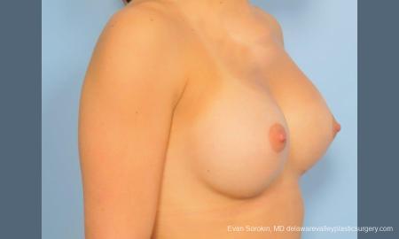 Philadelphia Breast Augmentation 8773 -  After Image 2