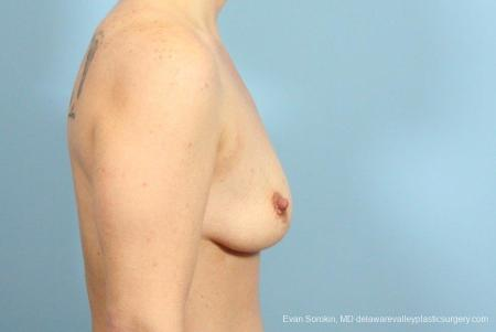 Philadelphia Breast Lift and Augmentation 8687 - Before and After Image 3