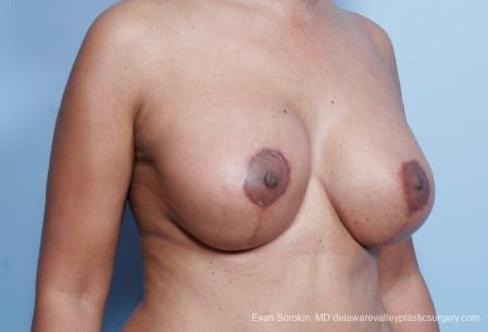 Philadelphia Breast Lift and Augmentation 8692 -  After Image 2