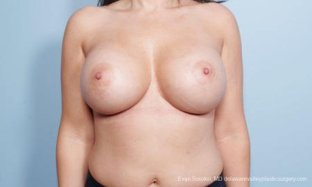 Philadelphia Breast Augmentation 9172 -  After Image 1