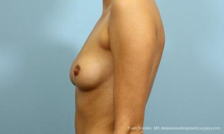 Philadelphia Breast Augmentation 9195 - Before and After Image 5