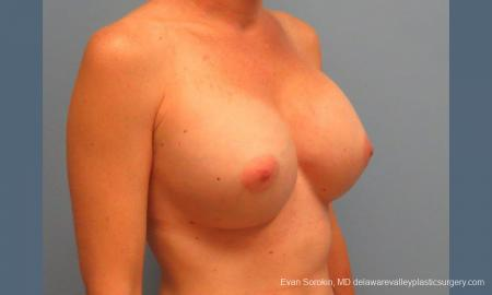 Philadelphia Breast Augmentation 9456 -  After Image 2