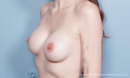 Philadelphia Breast Augmentation 8649 -  After Image 4