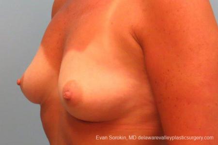 Philadelphia Breast Augmentation 9406 - Before Image 4