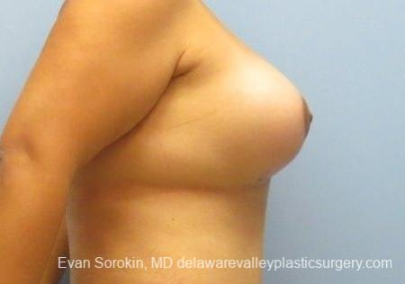 Philadelphia Breast Lift and Augmentation 8677 -  After 4