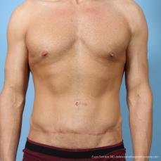 Philadelphia Abdominoplasty 9468 - After Image