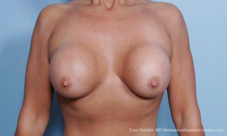 Philadelphia Breast Augmentation 9452 - Before Image 1