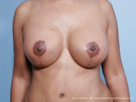Philadelphia Breast Lift and Augmentation 8692 -  After Image 1
