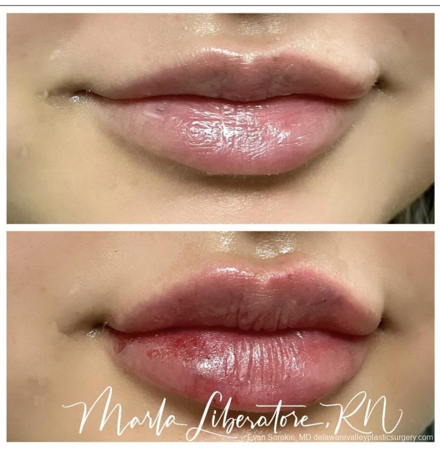 Lip Augmentation: Patient 17 - Before and After Image 1