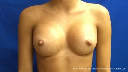Philadelphia Breast Augmentation 13176 -  After Image 1