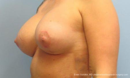 Philadelphia Breast Lift and Augmentation 9370 -  After Image 2