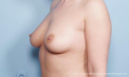 Philadelphia Breast Augmentation 9172 - Before Image 4