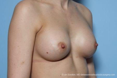 Philadelphia Breast Augmentation 8763 -  After Image 2