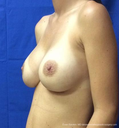 Philadelphia Breast Augmentation 13067 -  After Image 4