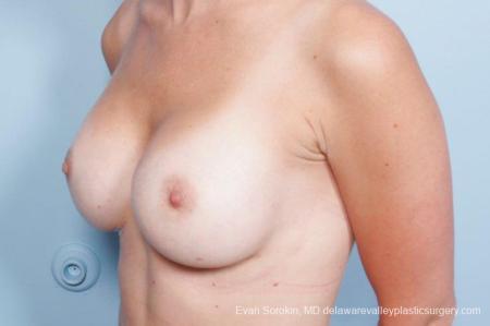 Philadelphia Breast Augmentation 8651 -  After Image 3