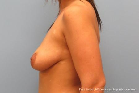 Philadelphia Breast Lift and Augmentation 8688 - Before and After Image 5
