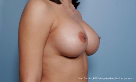 Philadelphia Breast Augmentation 9373 -  After Image 2
