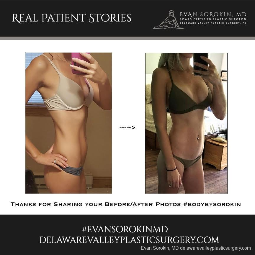 Real Patient Stories: Patient 25 - Before and After Image 1