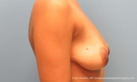 Philadelphia Breast Lift and Augmentation 10119 - Before Image 3