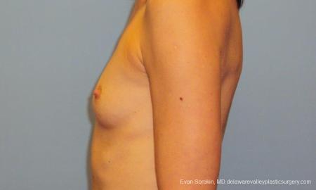Philadelphia Breast Augmentation 9417 - Before and After Image 5