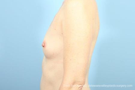Philadelphia Breast Augmentation 8662 - Before and After Image 5