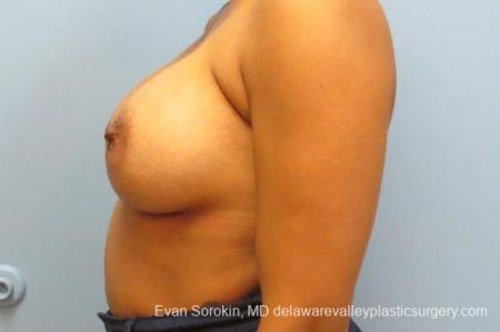 Philadelphia Breast Augmentation 9387 -  After Image 5
