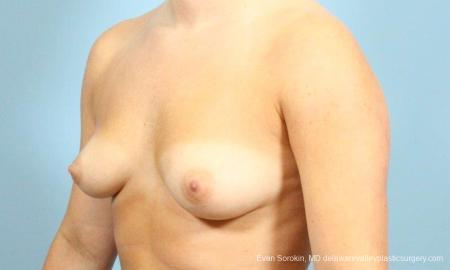 Philadelphia Breast Augmentation 8650 - Before Image 3