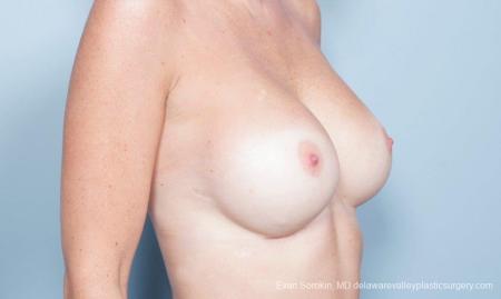 Philadelphia Breast Augmentation 8777 -  After Image 2