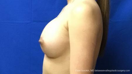 Philadelphia Breast Augmentation 13172 -  After Image 5