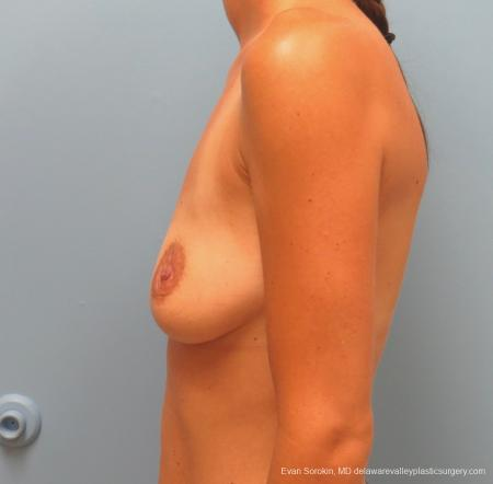 Philadelphia Breast Augmentation 13067 - Before and After Image 5