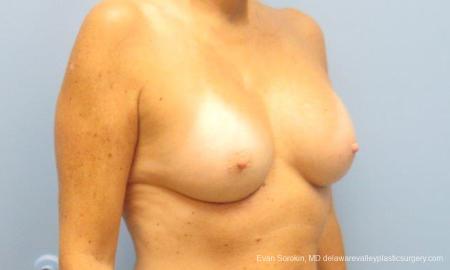Philadelphia Breast Augmentation 9549 -  After Image 2