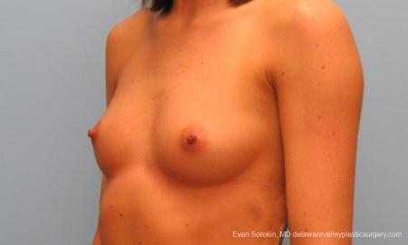 Philadelphia Breast Augmentation 9421 - Before Image 4