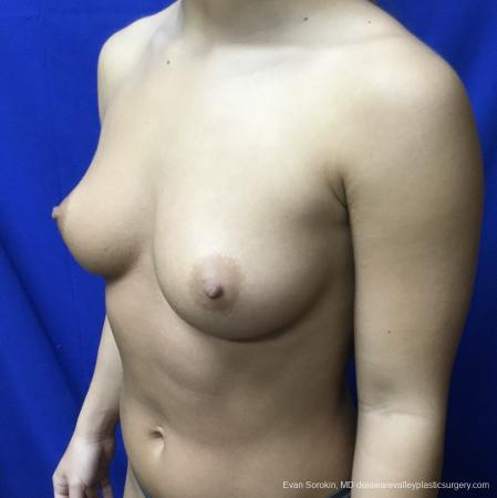 Breast Augmentation: Patient 167 - Before Image 4