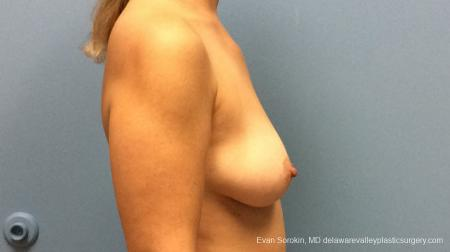 Philadelphia Breast Lift and Augmentation 13179 - Before Image 2