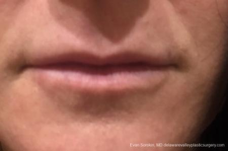 Lip Filler: Patient 13 - Before Image 1