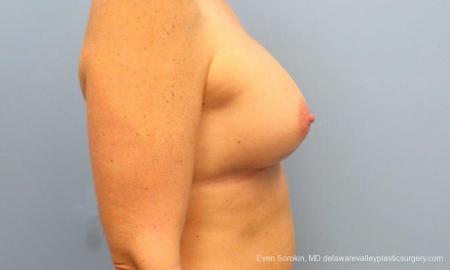 Philadelphia Breast Augmentation 9487 -  After Image 3