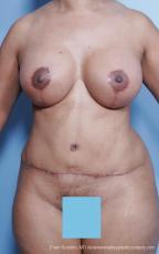 Philadelphia Mommy Makeover 8691 - After Image