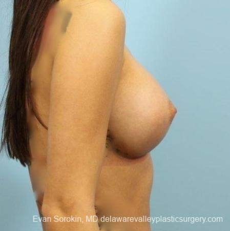 Philadelphia Breast Augmentation 8657 -  After Image 4