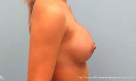 Philadelphia Breast Augmentation 9341 -  After Image 3