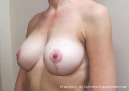 Philadelphia Breast Lift and Augmentation 8683 -  After Image 3