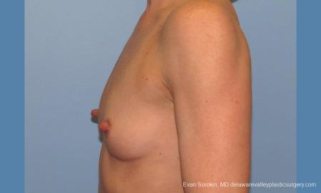 Philadelphia Breast Augmentation 9744 - Before and After Image 5