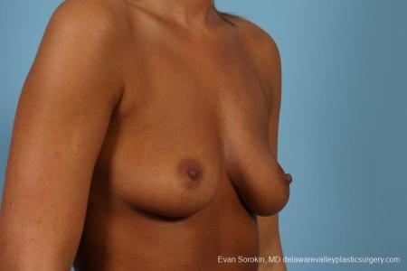 Philadelphia Breast Augmentation 9404 - Before Image 2